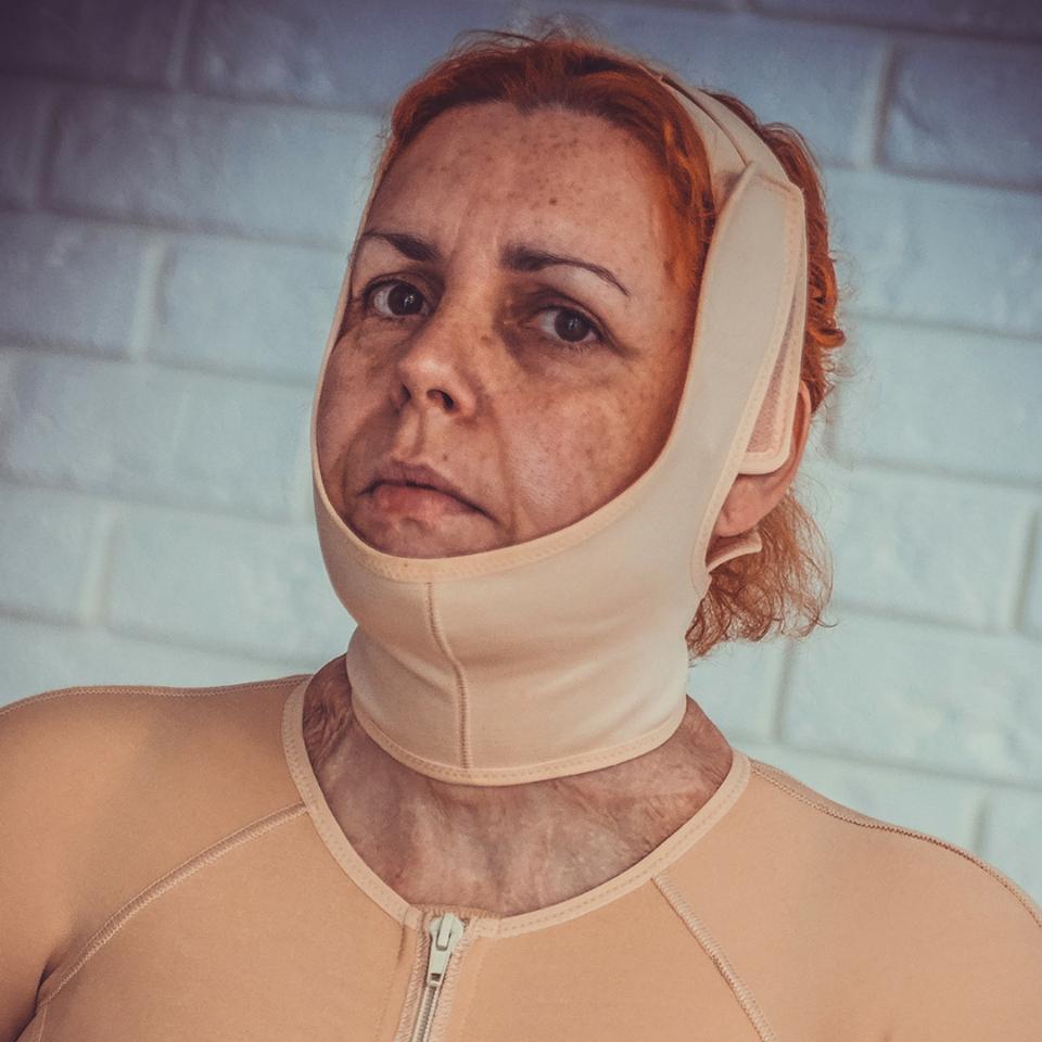 Ponadprzeciętna Jolanta Golianek - Fundacja Poparzeni